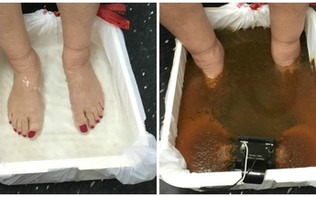 Ion Cleanse Detox Footbath: Part 2
