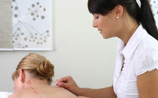How to Prepare for Your Acupuncture Appointment